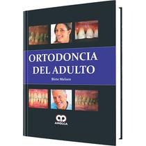 Ortodoncia Del Adulto Melsen